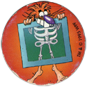 World POG Federation (WPF) > Avimage > Candia 05-Pogman-with-X-ray.